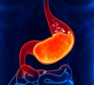 What's the difference between heartburn and acid reflux?